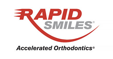 Rapid Smiles Logo