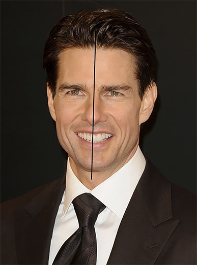 Tom Cruise (after)